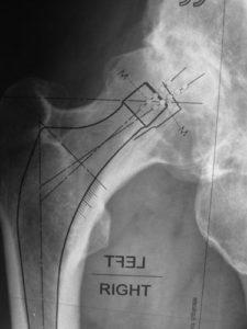 planification prothese dans femur